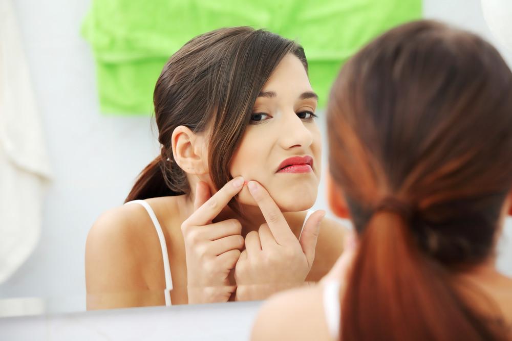 lichte vorm van acne
